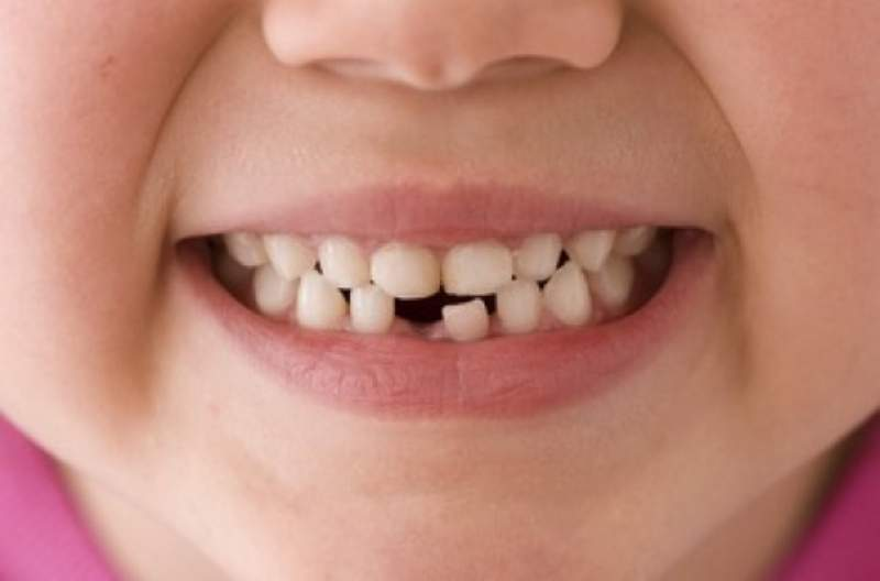 Dentizione bambini: quando cadono i denti da latte?